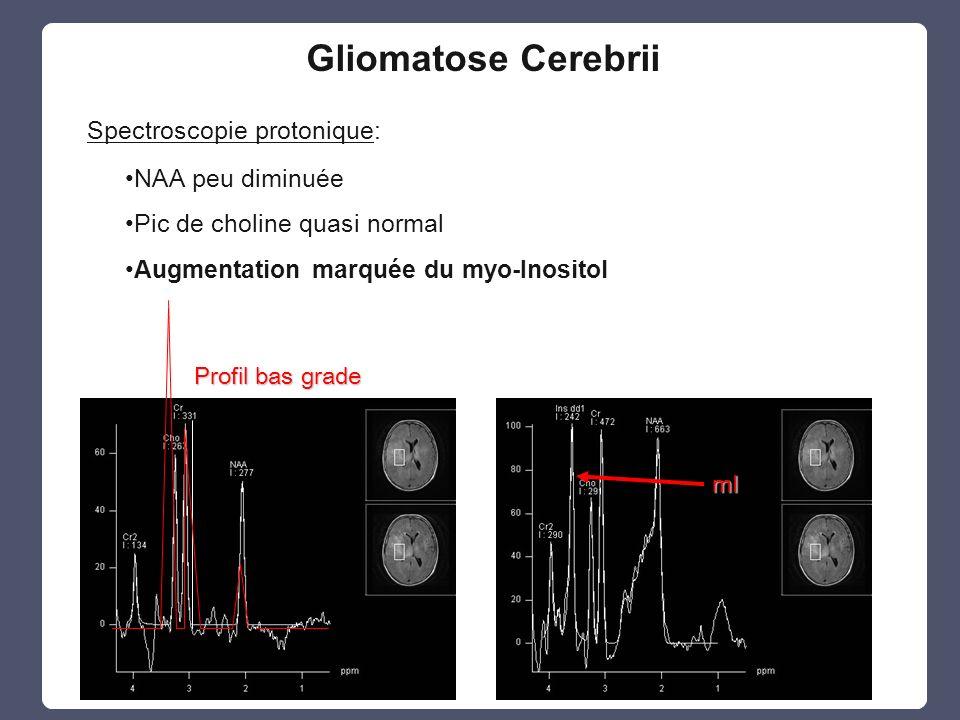 Gliomatose Cerebrii Spectroscopie protonique: NAA peu diminuée Pic de choline quasi normal Augmentation marquée du myo-InositolmI Profil bas grade