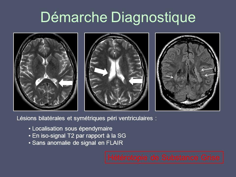 Démarche Diagnostique Lésions bilatérales et symétriques péri ventriculaires : Localisation sous épendymaire En iso-signal T2 par rapport à la SG Sans