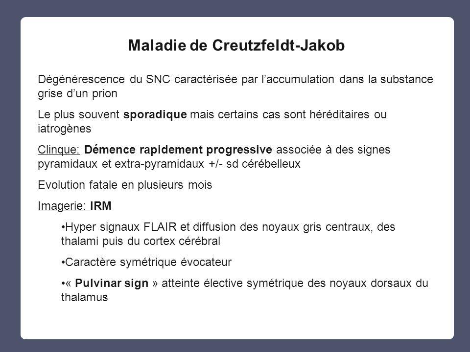 Maladie de Creutzfeldt-Jakob Dégénérescence du SNC caractérisée par laccumulation dans la substance grise dun prion Le plus souvent sporadique mais ce