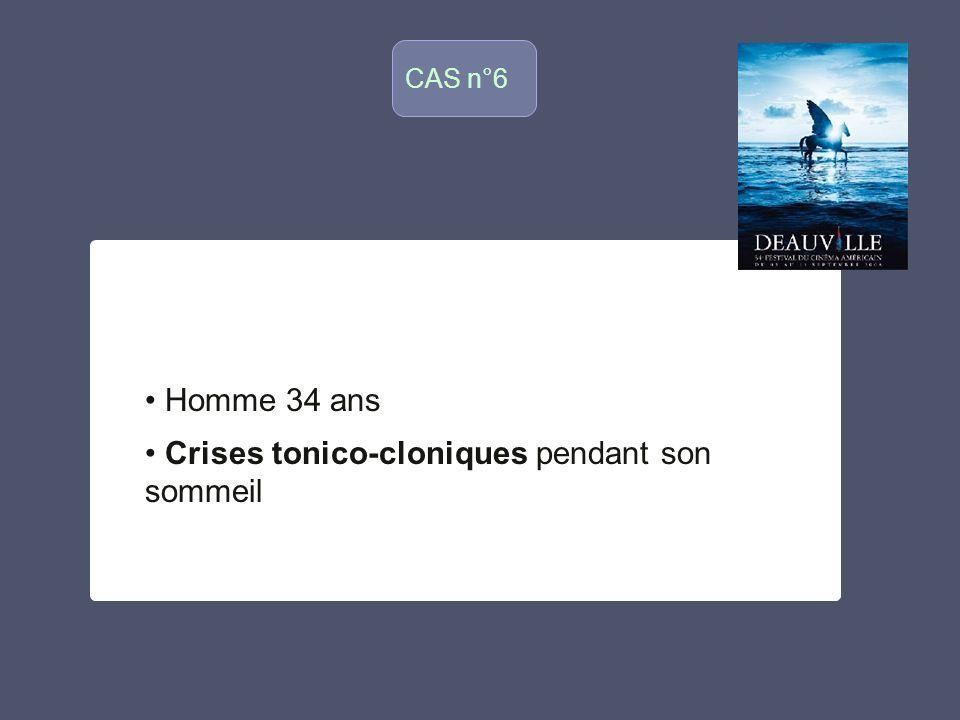 CAS n°6 o Homme 34 ans Crises tonico-cloniques pendant son sommeil