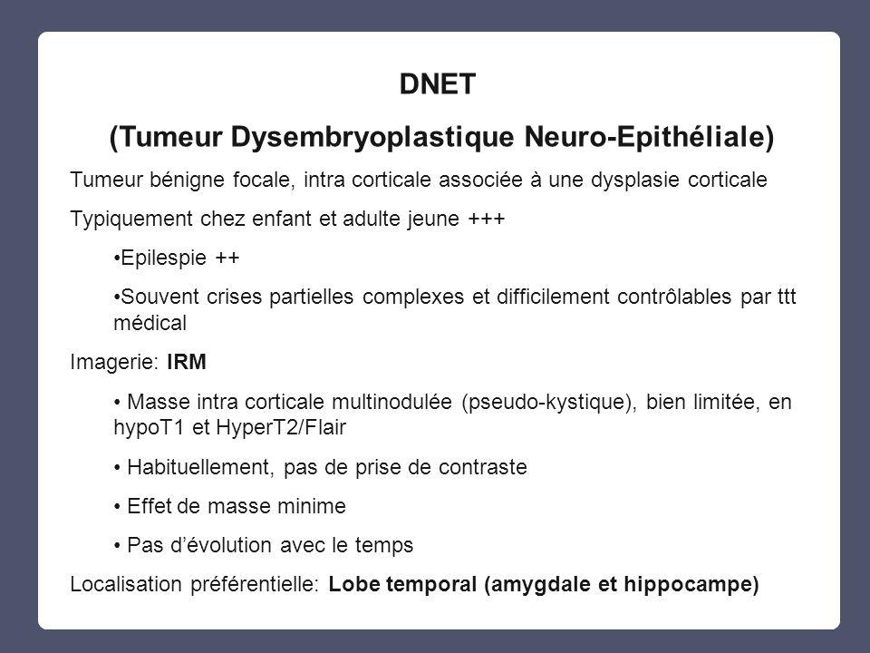 (Tumeur Dysembryoplastique Neuro-Epithéliale) Tumeur bénigne focale, intra corticale associée à une dysplasie corticale Typiquement chez enfant et adu
