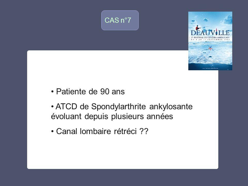CAS n°7 o Patiente de 90 ans ATCD de Spondylarthrite ankylosante évoluant depuis plusieurs années Canal lombaire rétréci ??