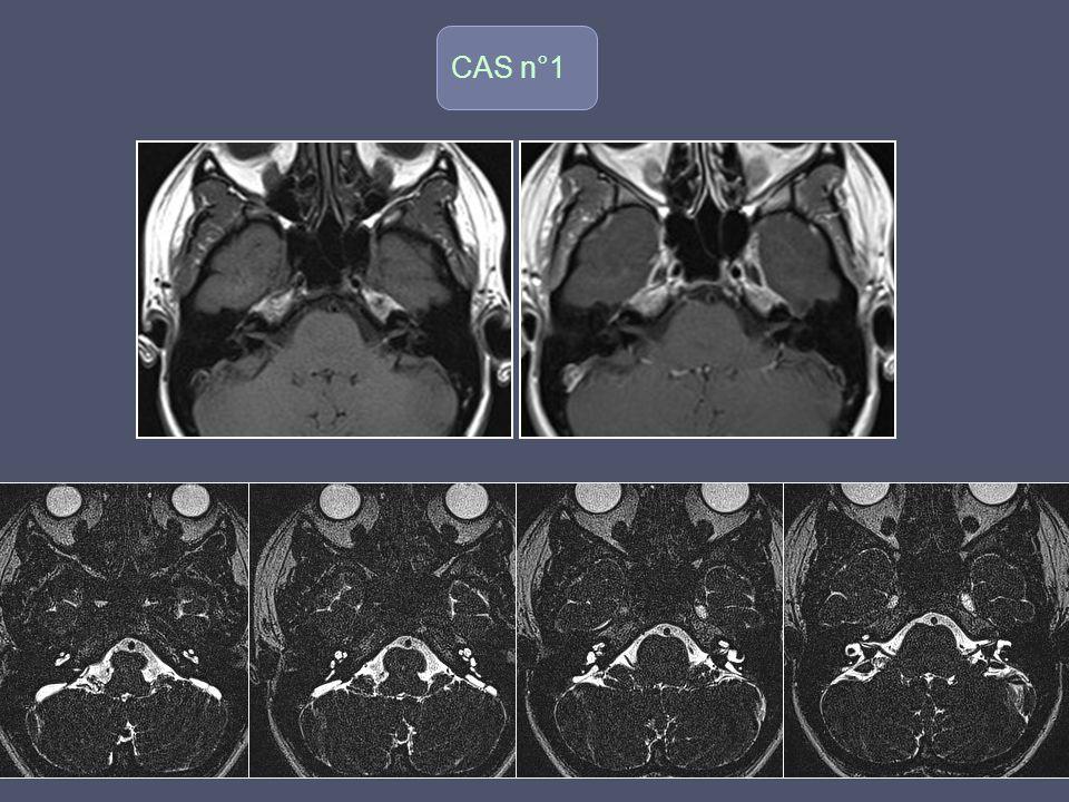 (Tumeur Dysembryoplastique Neuro-Epithéliale) Tumeur bénigne focale, intra corticale associée à une dysplasie corticale Typiquement chez enfant et adulte jeune +++ Epilespie ++ Souvent crises partielles complexes et difficilement contrôlables par ttt médical Imagerie: IRM Masse intra corticale multinodulée (pseudo-kystique), bien limitée, en hypoT1 et HyperT2/Flair Habituellement, pas de prise de contraste Effet de masse minime Pas dévolution avec le temps Localisation préférentielle: Lobe temporal (amygdale et hippocampe)