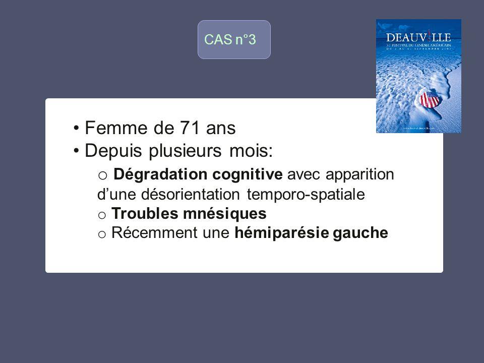 CAS n°3 o Femme de 71 ans Depuis plusieurs mois: o Dégradation cognitive avec apparition dune désorientation temporo-spatiale o Troubles mnésiques o R