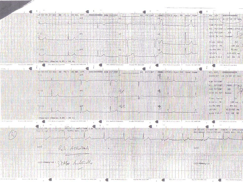 Cas Clinique Devant ce tableau clinique sur place est administré: En iv 0.5g datropine qui en 15 min fait passer fc de 32 à 40 avec eva de 5/10 à 3/10 tension stable En iv 0.5g datropine qui en 15 min fait passer fc de 32 à 40 avec eva de 5/10 à 3/10 tension stable