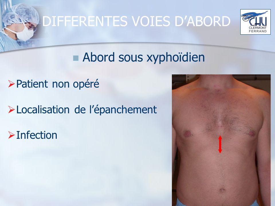 DIFFERENTES VOIES DABORD Abord sous xyphoïdien Patient non opéré Localisation de lépanchement Infection