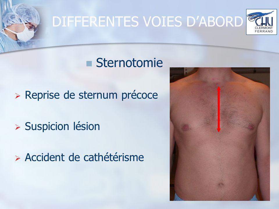 DIFFERENTES VOIES DABORD Sternotomie Reprise de sternum précoce Suspicion lésion Accident de cathétérisme