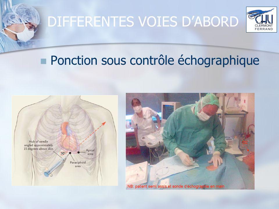 DIFFERENTES VOIES DABORD Ponction sous contrôle échographique