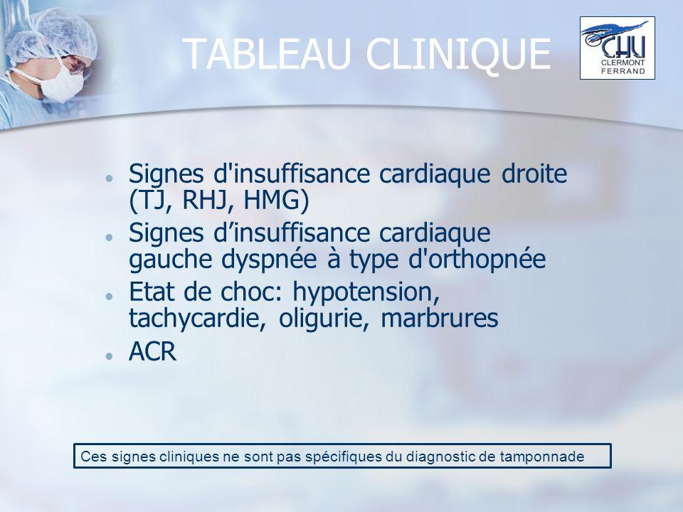 TABLEAU CLINIQUE Signes d insuffisance cardiaque droite (TJ, RHJ, HMG) Signes dinsuffisance cardiaque gauche dyspnée à type d orthopnée Etat de choc: hypotension, tachycardie, oligurie, marbrures ACR Ces signes cliniques ne sont pas spécifiques du diagnostic de tamponnade