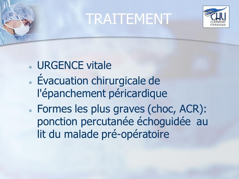 TRAITEMENT URGENCE vitale Évacuation chirurgicale de l épanchement péricardique Formes les plus graves (choc, ACR): ponction percutanée échoguidée au lit du malade pré-opératoire