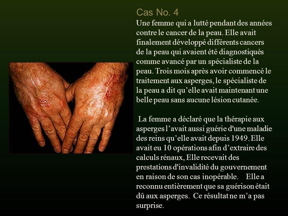 Cas No.4 Une femme qui a lutté pendant des années contre le cancer de la peau.
