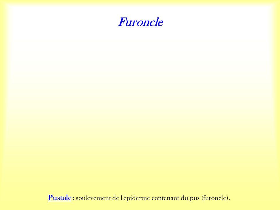 Furoncle Pustule : soulèvement de l épiderme contenant du pus (furoncle).
