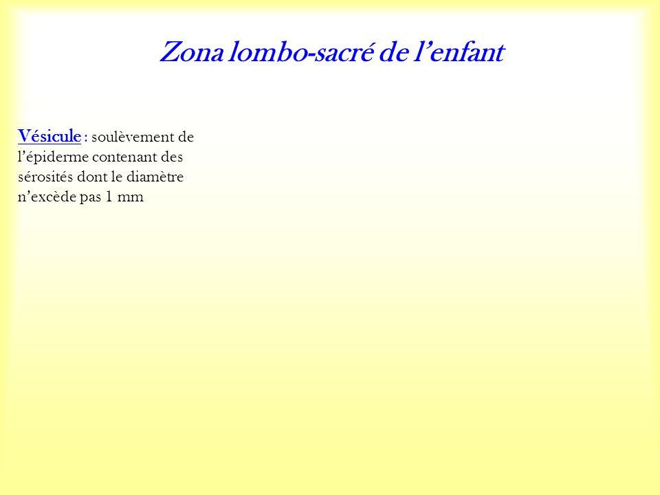 Zona lombo-sacré de lenfant Vésicule : soulèvement de lépiderme contenant des sérosités dont le diamètre nexcède pas 1 mm