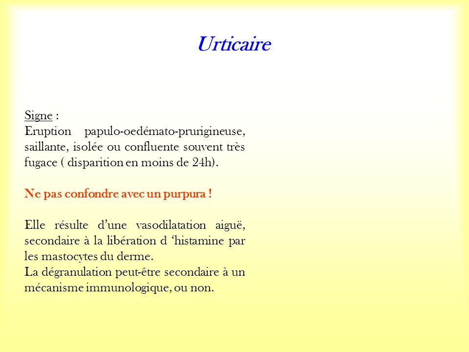 Urticaire Signe : Eruption papulo-oedémato-prurigineuse, saillante, isolée ou confluente souvent très fugace ( disparition en moins de 24h).