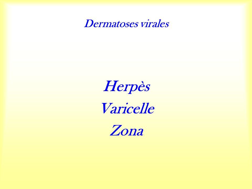 Dermatoses virales Herpès Varicelle Zona