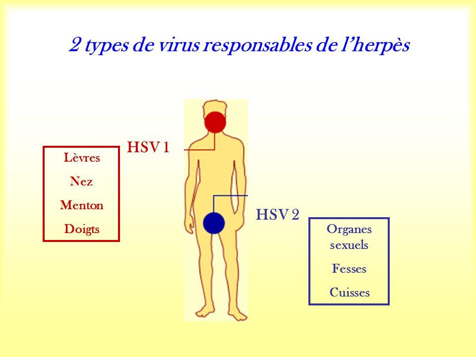 2 types de virus responsables de lherpès HSV 1 HSV 2 Lèvres Nez Menton Doigts Organes sexuels Fesses Cuisses