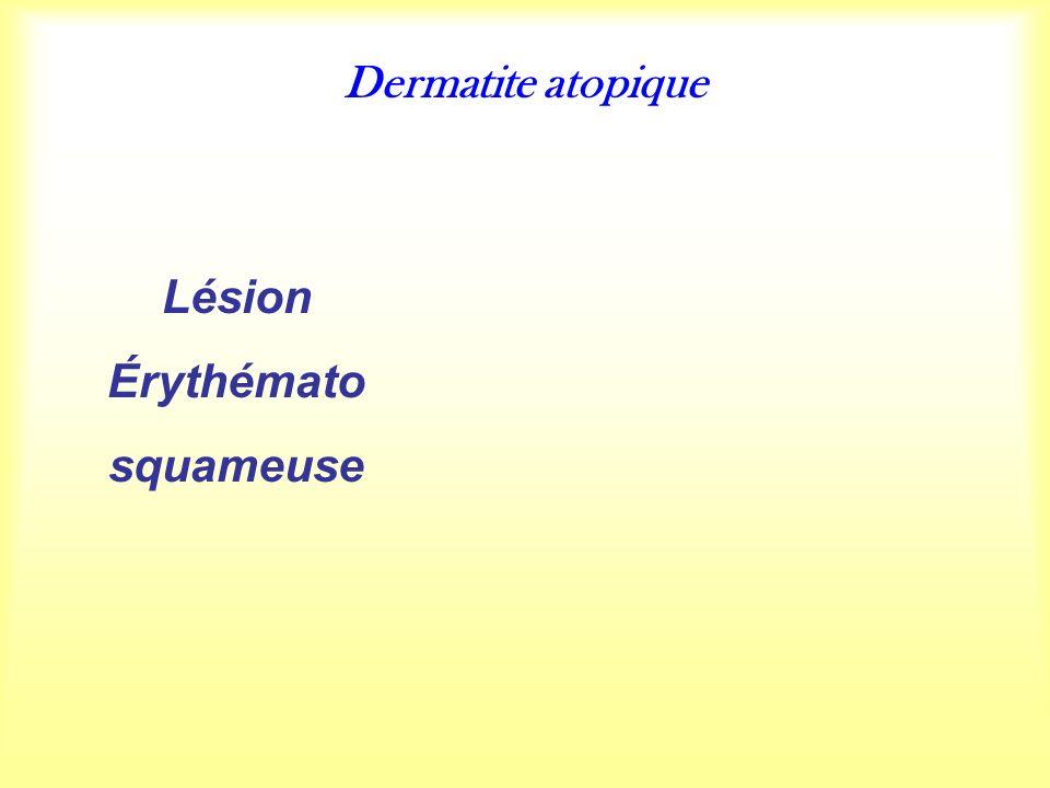 Dermatite atopique Lésion Érythémato squameuse