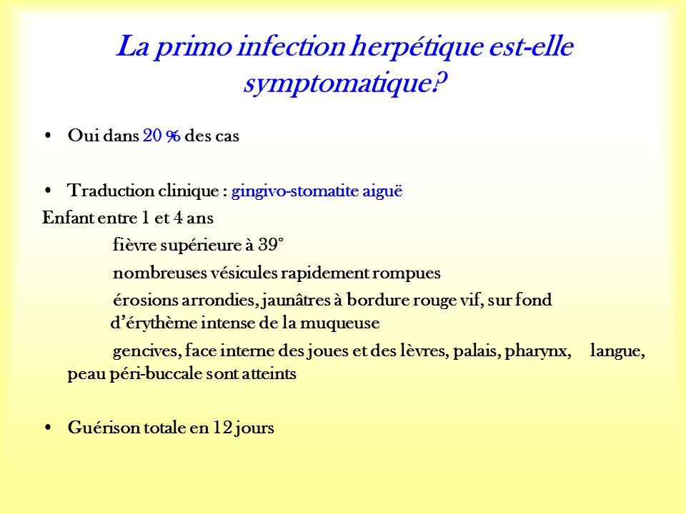La primo infection herpétique est-elle symptomatique.