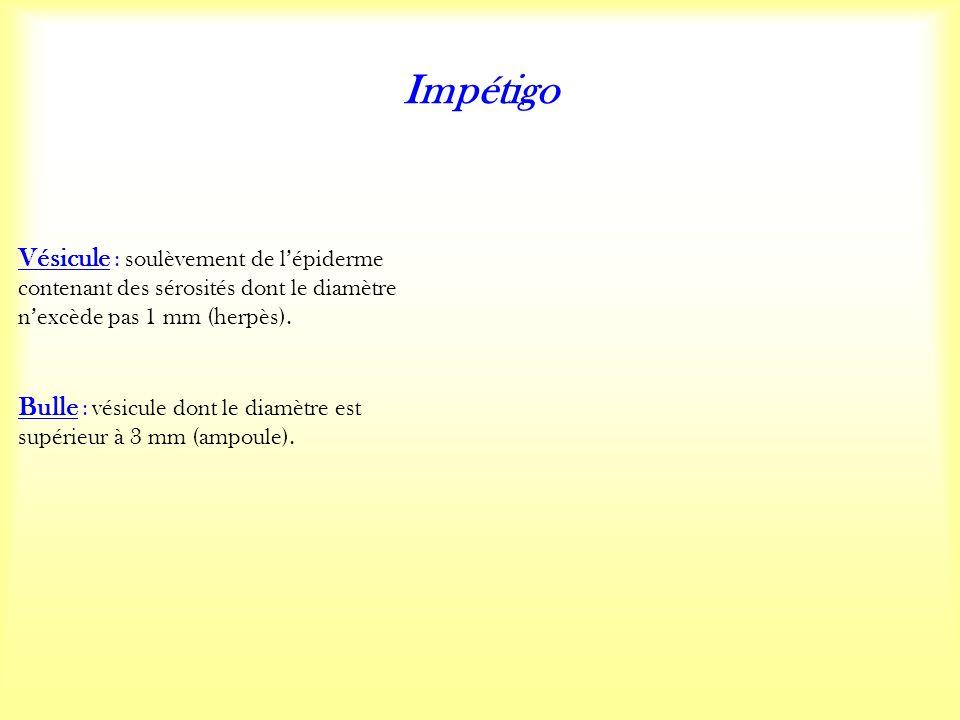 Impétigo Vésicule : soulèvement de lépiderme contenant des sérosités dont le diamètre nexcède pas 1 mm (herpès).