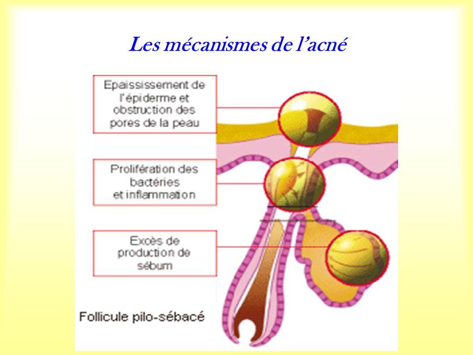 Les mécanismes de lacné