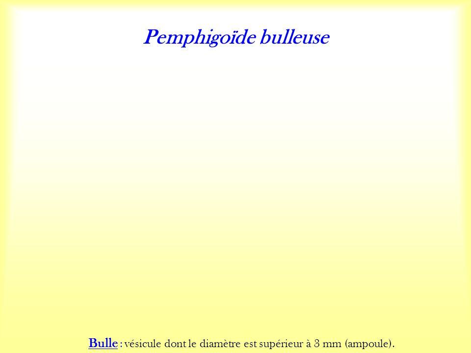Pemphigoïde bulleuse Bulle : vésicule dont le diamètre est supérieur à 3 mm (ampoule).