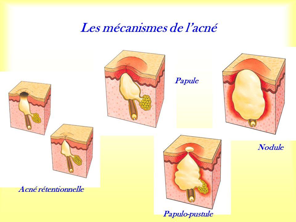 Papule Papulo-pustule Acné rétentionnelle Nodule Les mécanismes de lacné