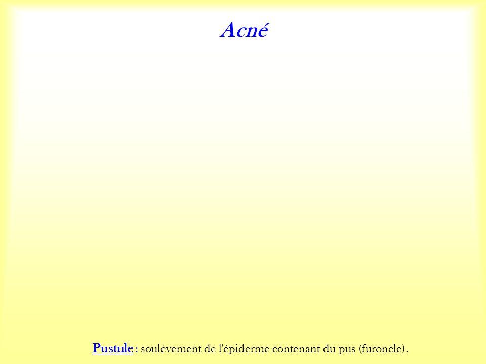 Acné Pustule : soulèvement de l épiderme contenant du pus (furoncle).