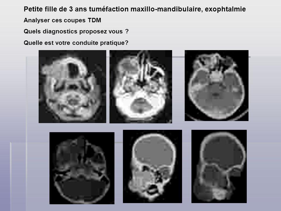 Petite fille de 3 ans tuméfaction maxillo-mandibulaire, exophtalmie Analyser ces coupes TDM Quels diagnostics proposez vous ? Quelle est votre conduit