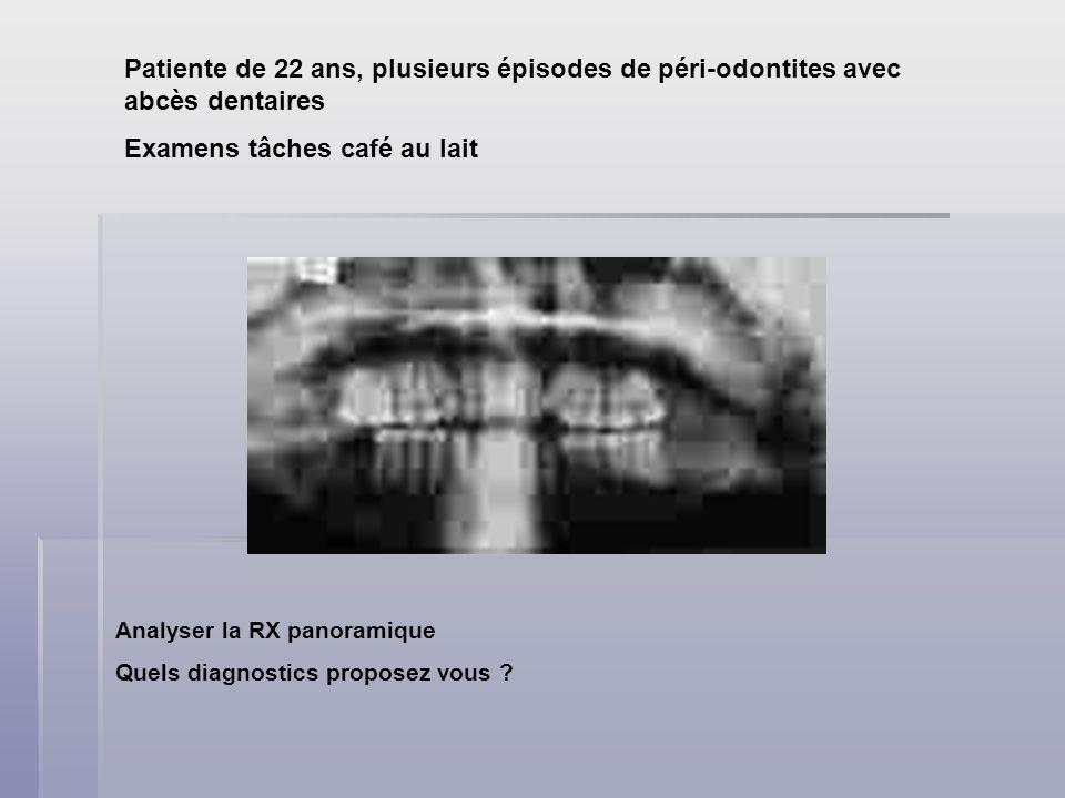 Patiente de 22 ans, plusieurs épisodes de péri-odontites avec abcès dentaires Examens tâches café au lait Analyser la RX panoramique Quels diagnostics proposez vous ?