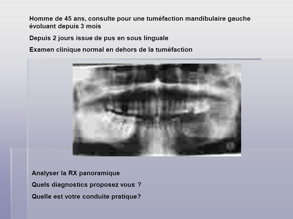 Homme de 45 ans, consulte pour une tuméfaction mandibulaire gauche évoluant depuis 3 mois Depuis 2 jours issue de pus en sous linguale Examen clinique normal en dehors de la tuméfaction Analyser la RX panoramique Quels diagnostics proposez vous .