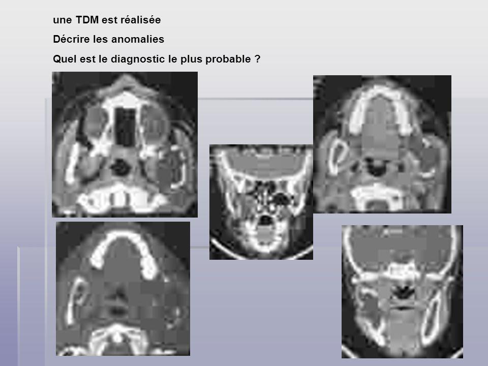 une TDM est réalisée Décrire les anomalies Quel est le diagnostic le plus probable ?