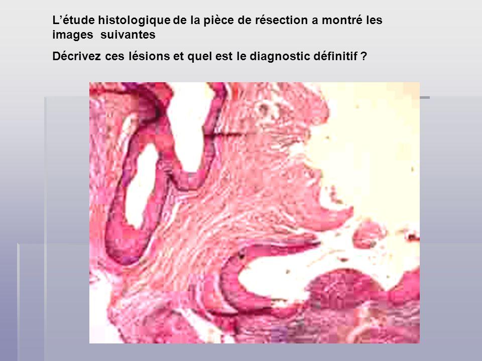 Létude histologique de la pièce de résection a montré les images suivantes Décrivez ces lésions et quel est le diagnostic définitif ?