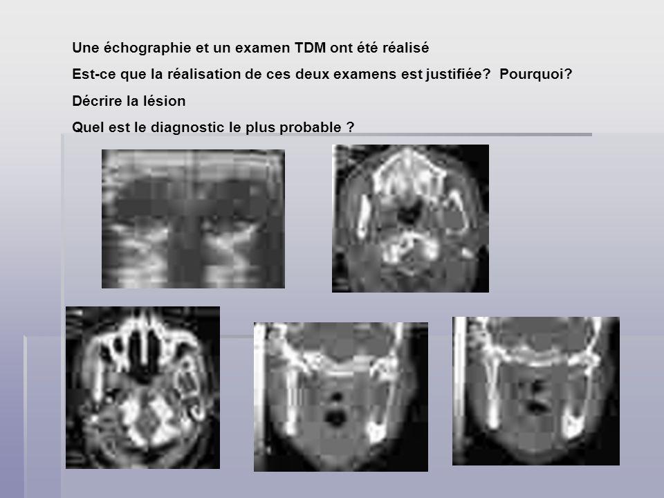Une échographie et un examen TDM ont été réalisé Est-ce que la réalisation de ces deux examens est justifiée? Pourquoi? Décrire la lésion Quel est le