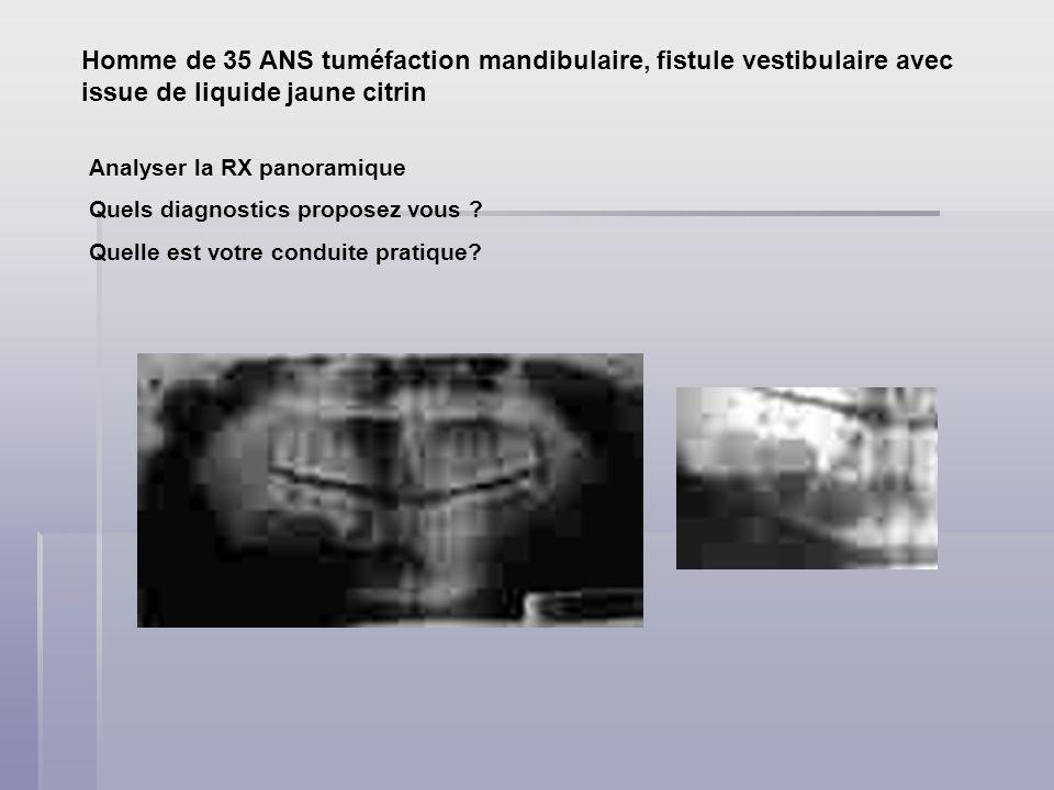Homme de 35 ANS tuméfaction mandibulaire, fistule vestibulaire avec issue de liquide jaune citrin Analyser la RX panoramique Quels diagnostics proposez vous .