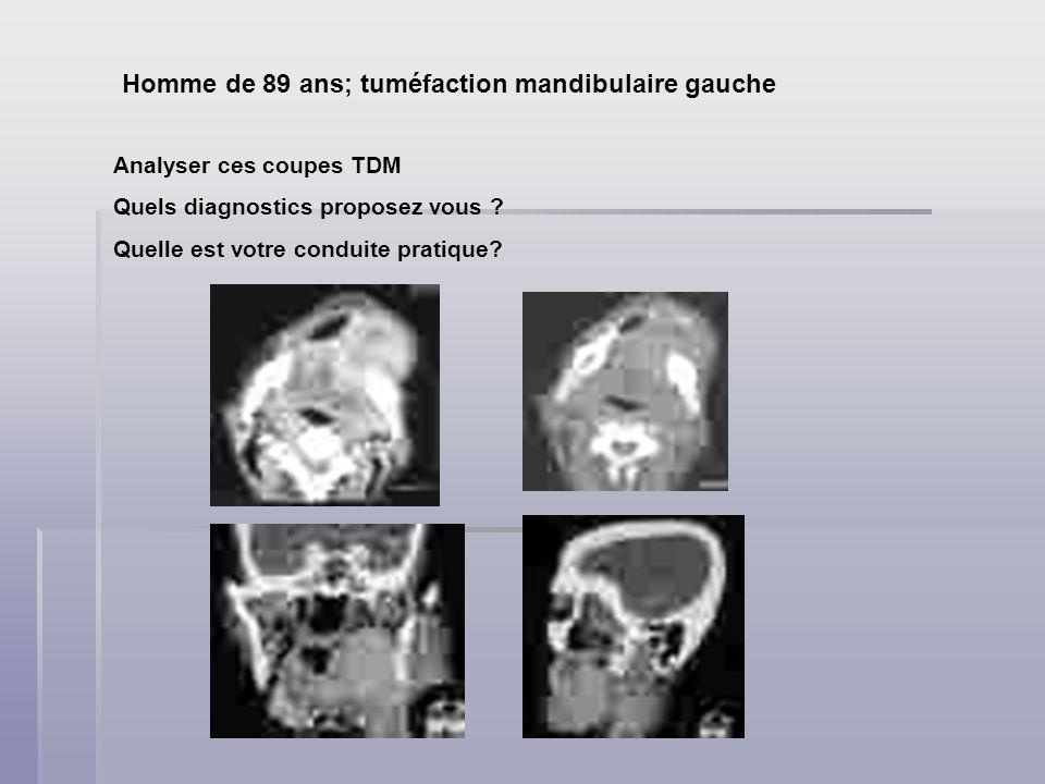 Homme de 89 ans; tuméfaction mandibulaire gauche Analyser ces coupes TDM Quels diagnostics proposez vous ? Quelle est votre conduite pratique?