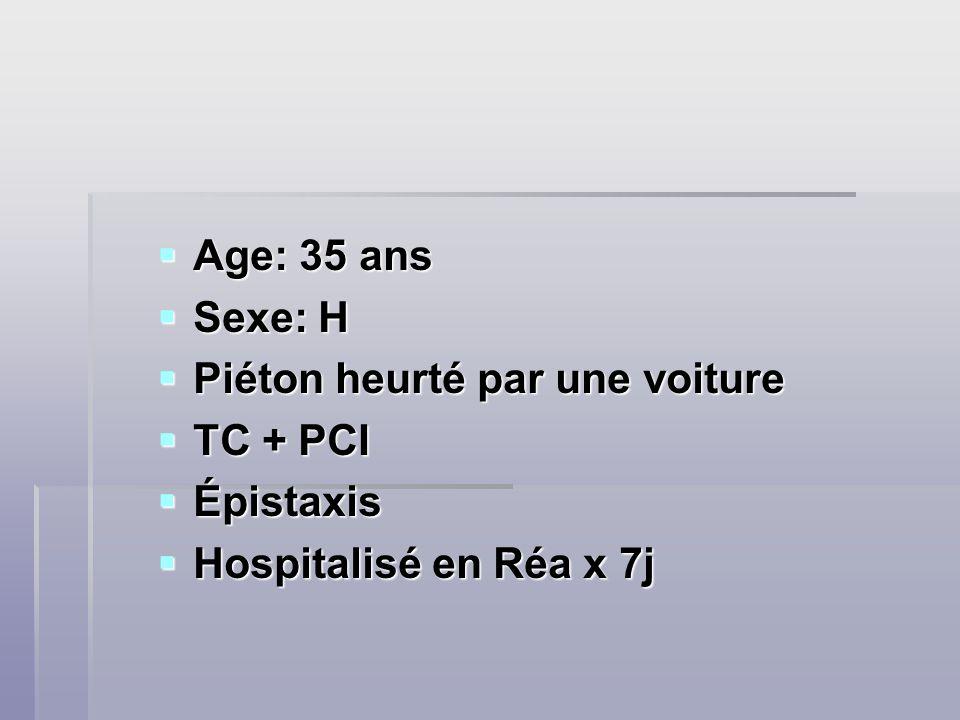 Age: 35 ans Age: 35 ans Sexe: H Sexe: H Piéton heurté par une voiture Piéton heurté par une voiture TC + PCI TC + PCI Épistaxis Épistaxis Hospitalisé