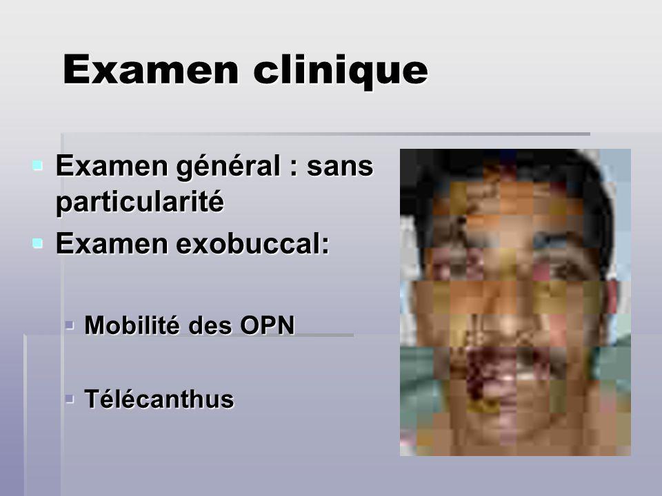Examen clinique Examen général : sans particularité Examen général : sans particularité Examen exobuccal: Examen exobuccal: Mobilité des OPN Mobilité
