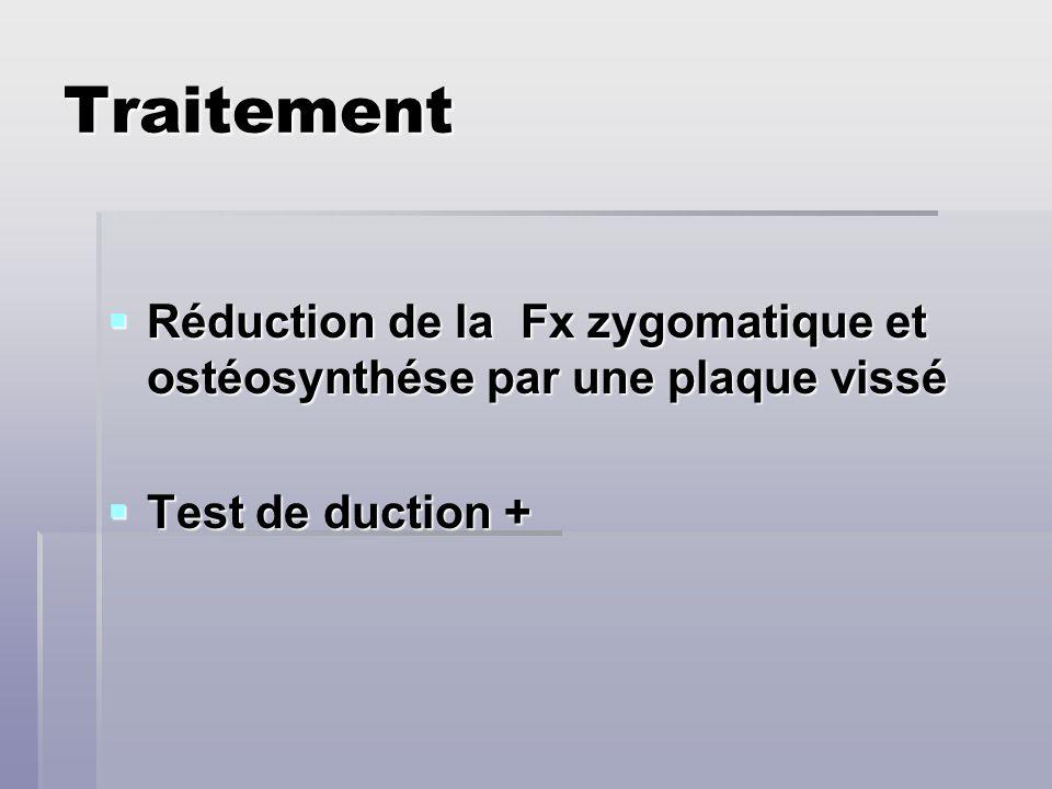 Traitement Réduction de la Fx zygomatique et ostéosynthése par une plaque vissé Réduction de la Fx zygomatique et ostéosynthése par une plaque vissé T