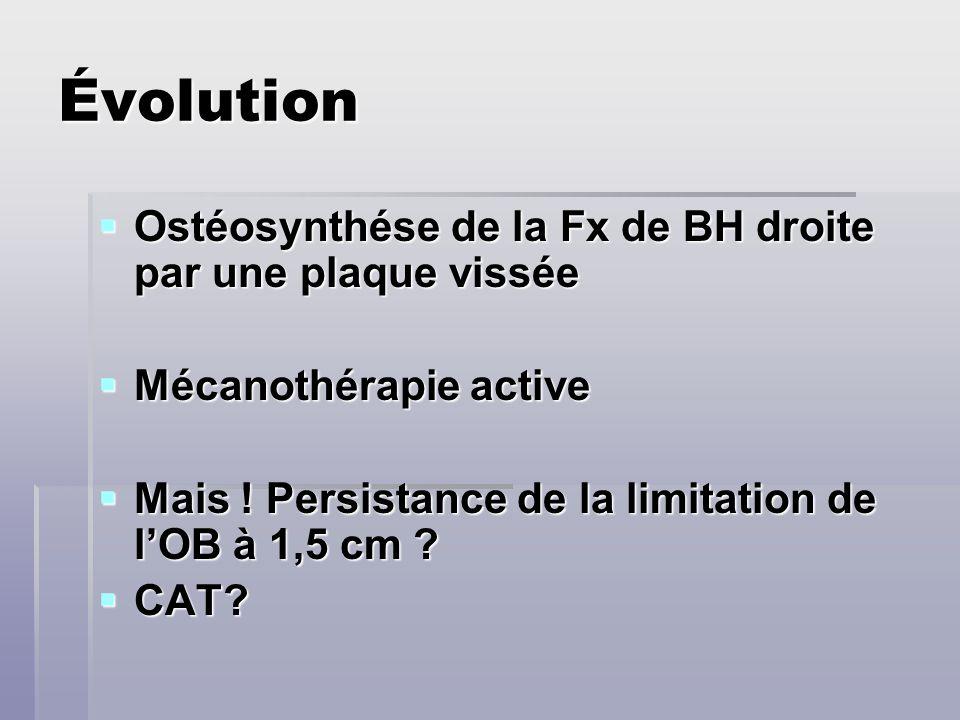 Évolution Ostéosynthése de la Fx de BH droite par une plaque vissée Ostéosynthése de la Fx de BH droite par une plaque vissée Mécanothérapie active Mé