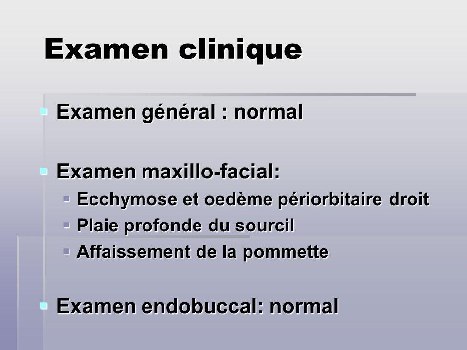 Examen clinique Examen général : normal Examen général : normal Examen maxillo-facial: Examen maxillo-facial: Ecchymose et oedème périorbitaire droit