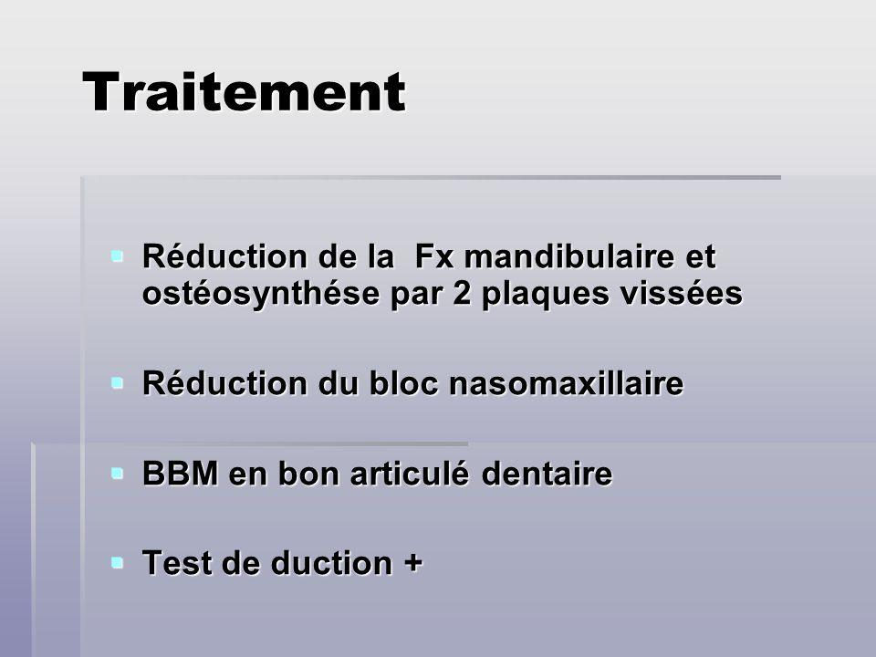 Traitement Réduction de la Fx mandibulaire et ostéosynthése par 2 plaques vissées Réduction de la Fx mandibulaire et ostéosynthése par 2 plaques vissé