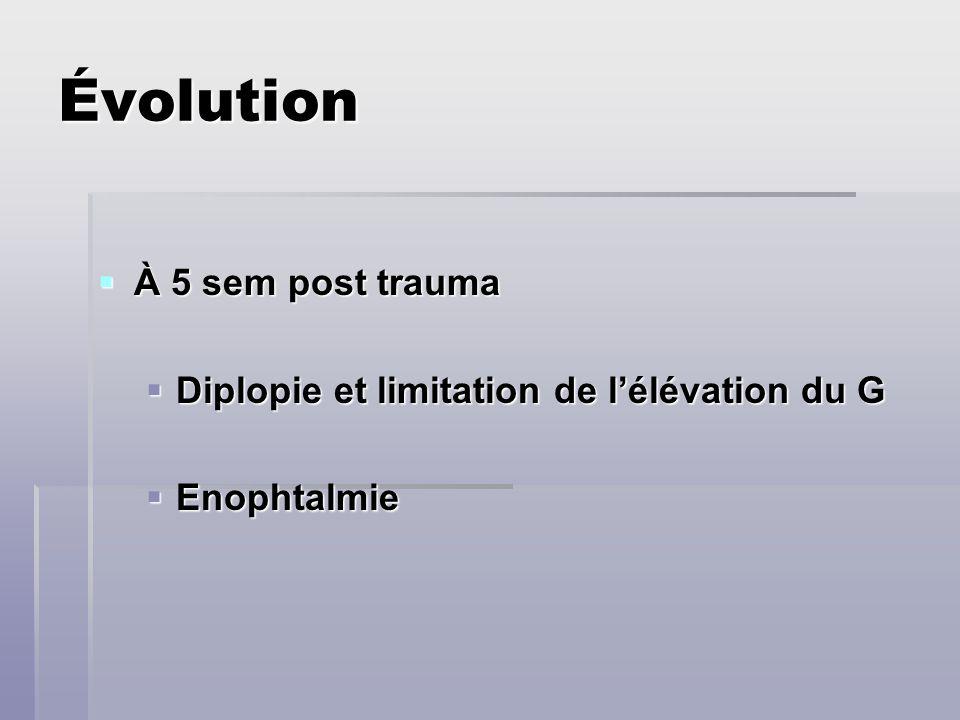 Évolution À 5 sem post trauma À 5 sem post trauma Diplopie et limitation de lélévation du G Diplopie et limitation de lélévation du G Enophtalmie Enop