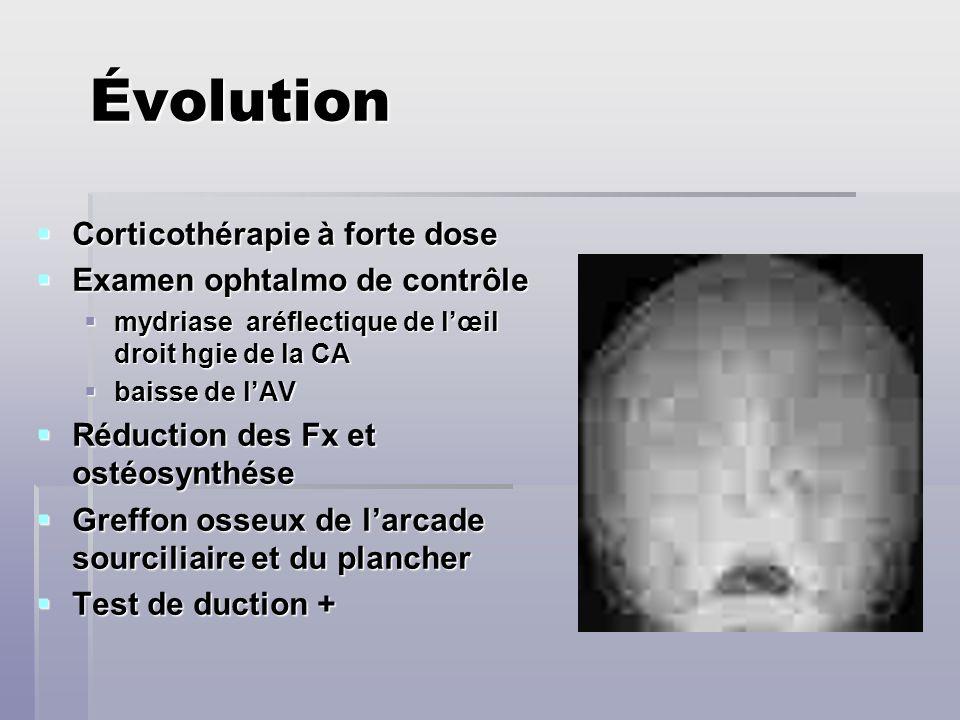 Évolution Corticothérapie à forte dose Corticothérapie à forte dose Examen ophtalmo de contrôle Examen ophtalmo de contrôle mydriase aréflectique de l