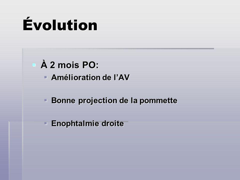 Évolution À 2 mois PO: À 2 mois PO: Amélioration de lAV Amélioration de lAV Bonne projection de la pommette Bonne projection de la pommette Enophtalmi