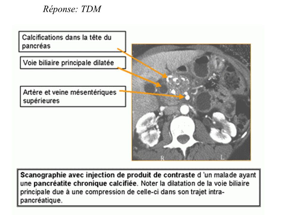Réponse: TDM