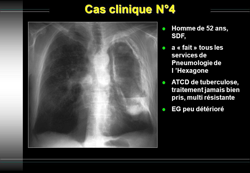 Cas clinique N°4 l Homme de 52 ans, SDF, l a « fait » tous les services de Pneumologie de l Hexagone l ATCD de tuberculose, traitement jamais bien pri