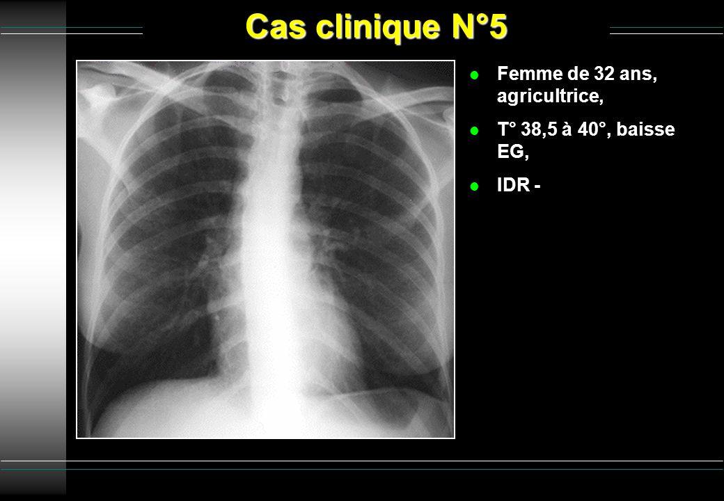 Cas clinique N°5 l Femme de 32 ans, agricultrice, l T° 38,5 à 40°, baisse EG, l IDR -