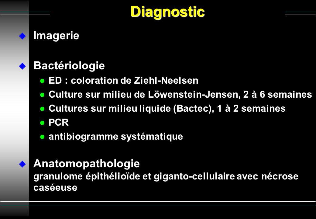 Imagerie Bactériologie l ED : coloration de Ziehl-Neelsen l Culture sur milieu de Löwenstein-Jensen, 2 à 6 semaines l Cultures sur milieu liquide (Bac