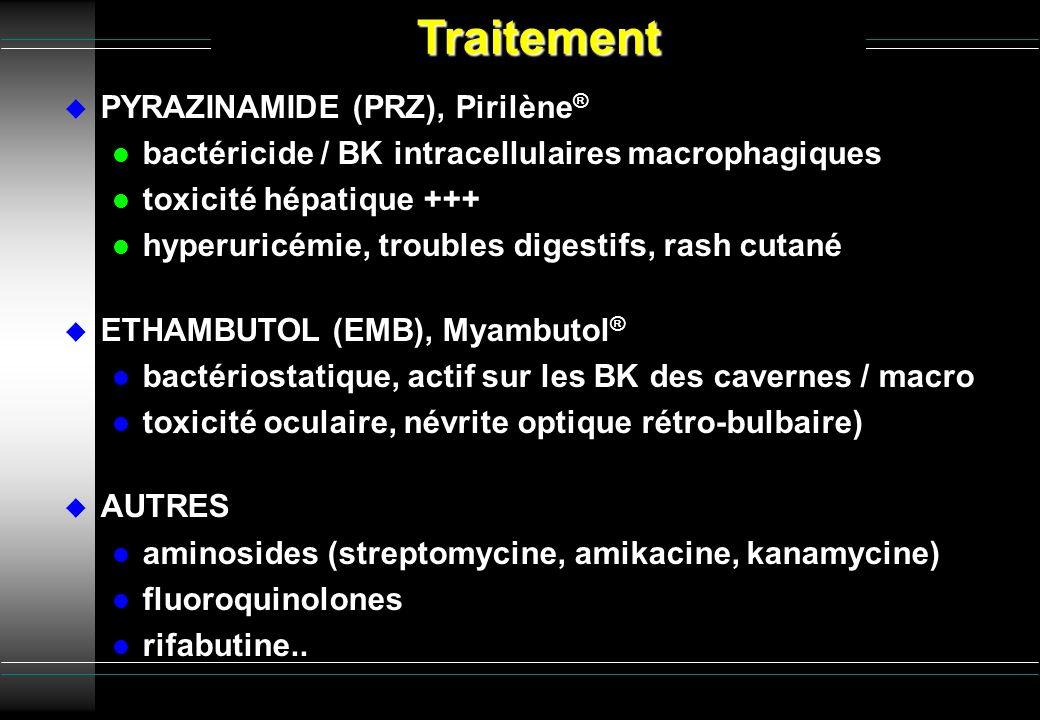 PYRAZINAMIDE (PRZ), Pirilène ® l bactéricide / BK intracellulaires macrophagiques l toxicité hépatique +++ l hyperuricémie, troubles digestifs, rash c