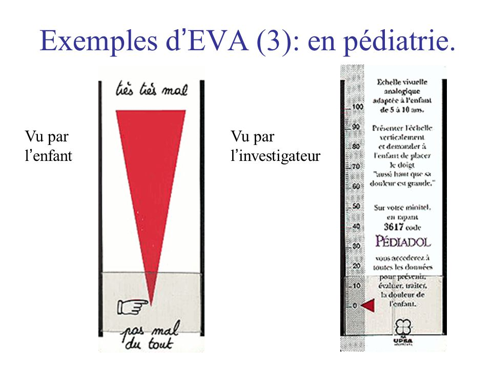 Exemples d EVA (3): en pédiatrie. Vu par l enfant Vu par l investigateur